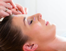 Discover facial acupuncture at the best day spa in Chicago